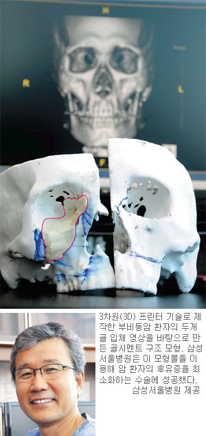 놀라운 '3D 프린터'… 암 수술도 해냈다 기사의 사진