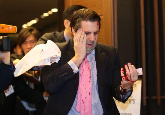 [美대사 테러]장윤석 의원이 미국대사 테러범 제압 기사의 사진