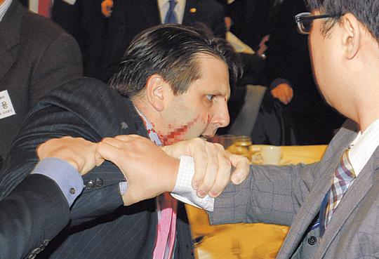 [뉴스분석] '미국의 얼굴' 서울 한복판서 테러 당했다… 리퍼트 美 대사 세종문화회관 강연장서 피습 기사의 사진