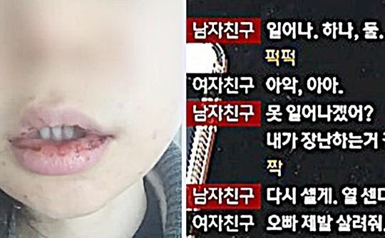 """X년이 이겼네"" 폭행남 두둔… 충격의 조선대 단체 카톡방 기사의 사진"