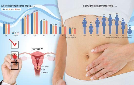 [And 건강] 젊은데 설마? 자궁경부암, 20대도 방심 금물! 기사의 사진