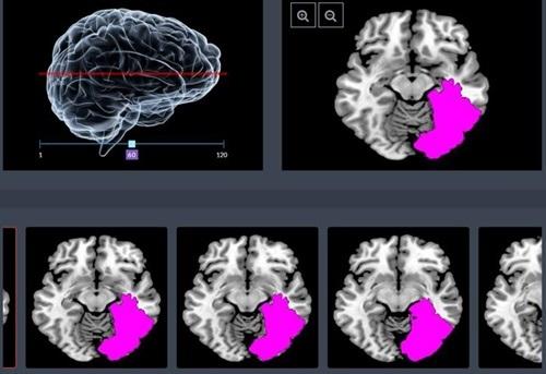 ㈜제이엘케이인스펙션, 국내 최초 인공지능(AI) 활용 '의료영상진단 분야 의료기기' 허가 절차 돌입 기사의 사진