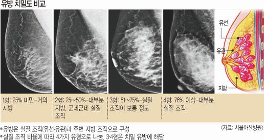 [And 건강] 유방암 키우는 '치밀유방'… 치밀한 검사로 잡자 기사의 사진