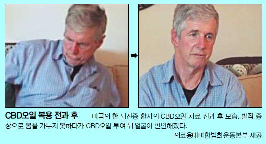 """[And 건강] 의료용 대마 합법화 논란…""""환자 고통 덜어줘야"""" vs """"오남용 우려"""" 기사의 사진"""