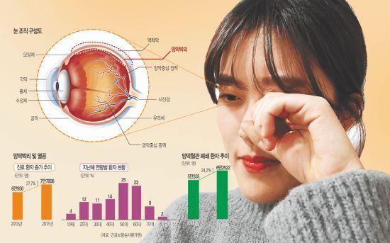 비문증 심해지면 망막박리 의심을… 방치하다간 실명 위험 기사의 사진